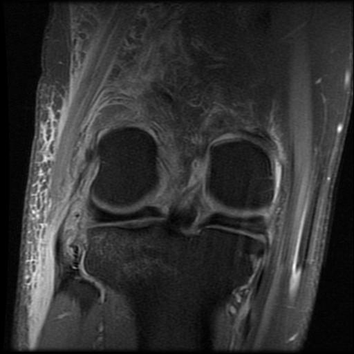 12-27-11 Knee MRI Front