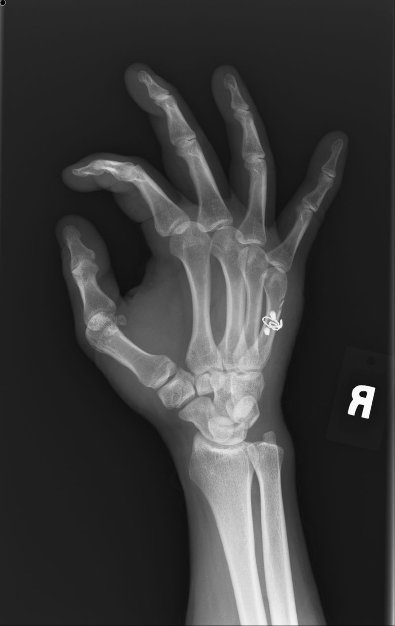 1-16-12 Hand X-Ray Angle - After