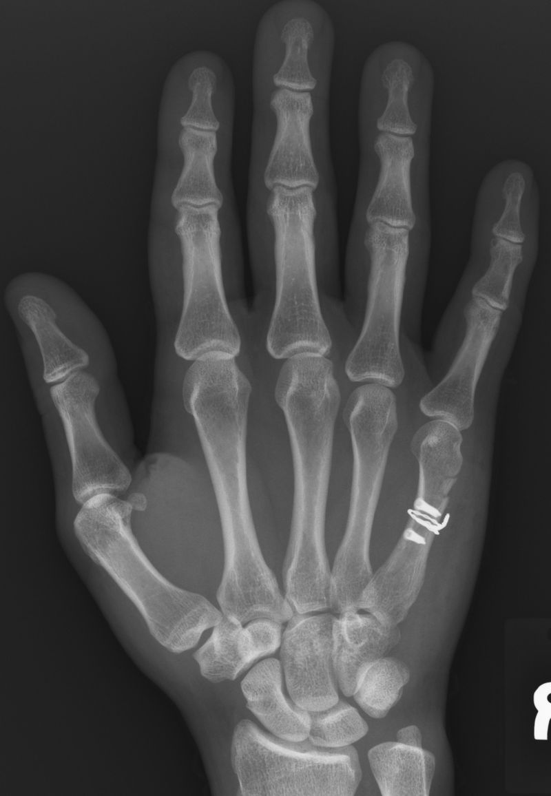 1-16-12 Hand X-Ray Top - After-cropped